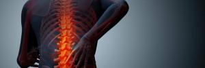 osteoporosis-men