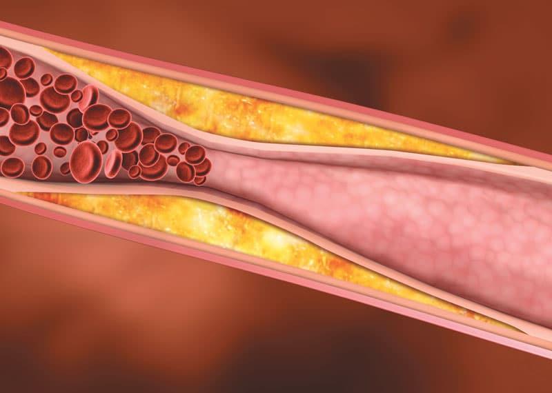 atherosclerosis-Πόσα πραγματικά γνωρίζετε για την αθηρωμάτωση;