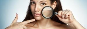 woman-acne