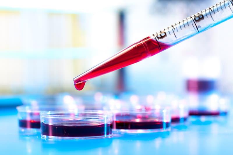 natura-nrg-check-up Αποκρυπτογραφήστε την εξέταση αίματός σας!