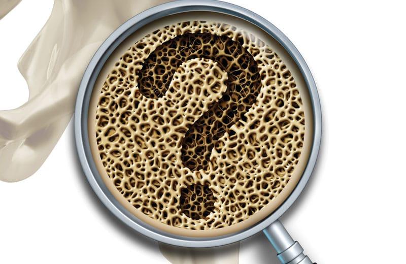 natura-nrg-osteoporosi Οστεοπόρωση. Σιωπηλή και αθόρυβη