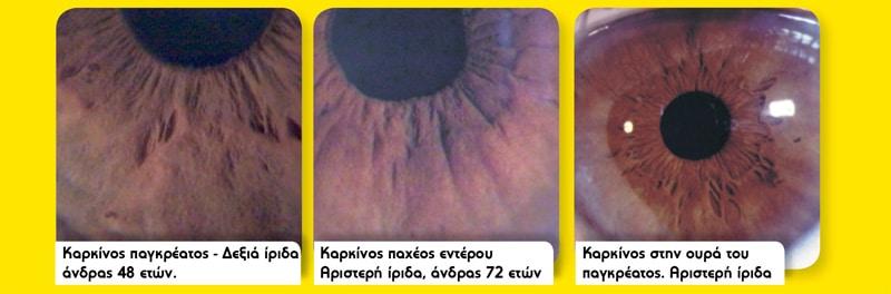 Karkinos-irida-naturanrg-02-2