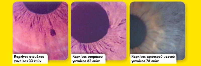 Karkinos-irida-naturanrg-02-3