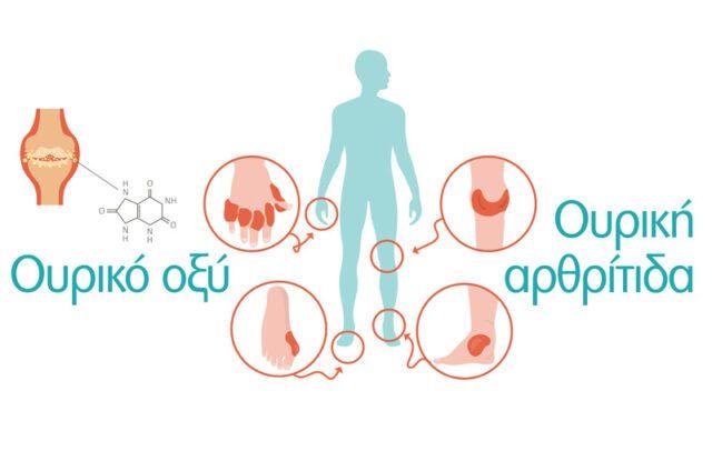 anthropos-athroseis-ouriko-oxy-ouriki-arthritida